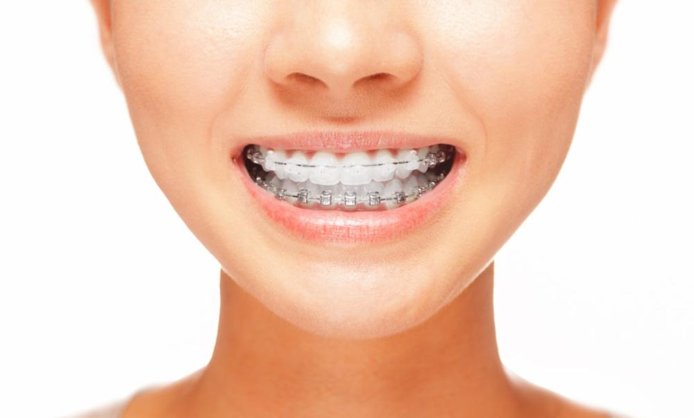 Six Month Smiles Clear Braces| Smith Dental OR