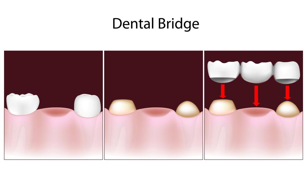 Dental Bridge | Smith Dental | Dentist in Aloha & Hillsboro OR
