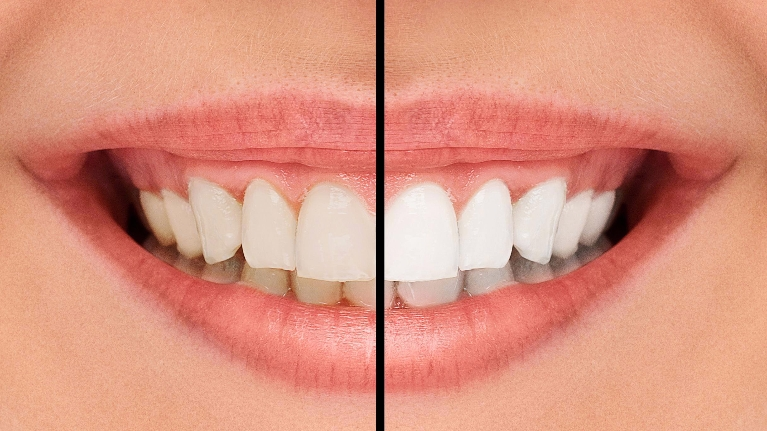 Professional Teeth Whitening | Hillsboro OR Dentist