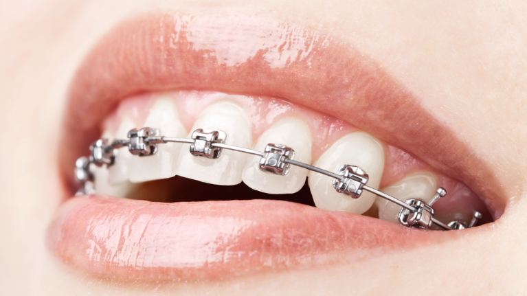 A Mouth With Braces | Hillsboro and Aloha, OR Dentist